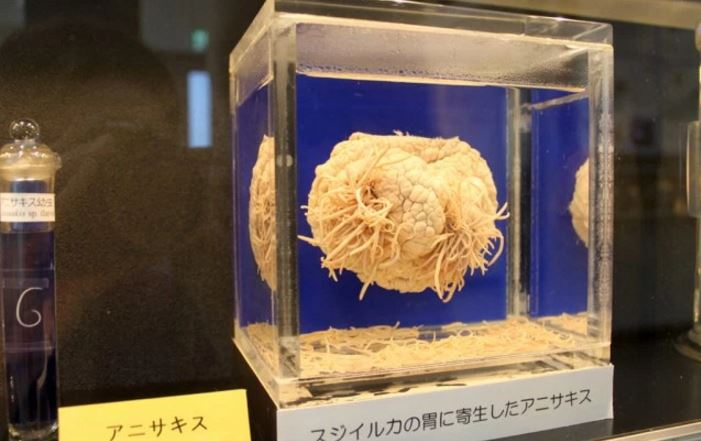 30-ft-tapeworm-top-10-weirdest-things-ever-preserved-in-a-museum-2017