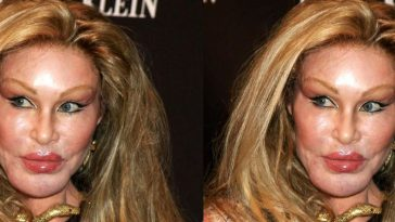Jocelyn Wildenstein Top Most Ugliest People That are Considered Attractive 2017